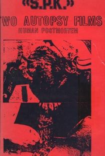 Assistir S.P.K.: Two Autopsy Films: Human Postmortem Online Grátis Dublado Legendado (Full HD, 720p, 1080p) |  | 1983